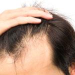 プロテインを飲むと薄毛になる、禿げるって本当?