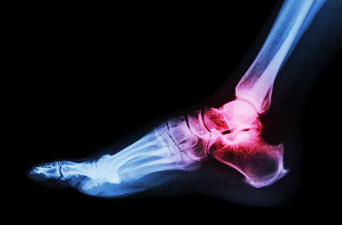 プロテインと筋トレと「痛風」の関係とは?